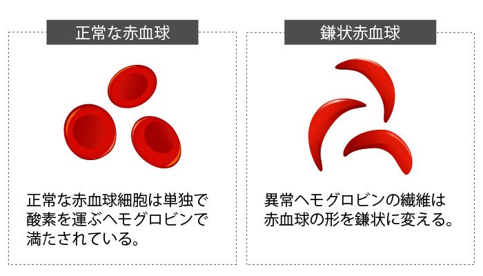 有性生殖⑤鎌状赤血球症とマラリア